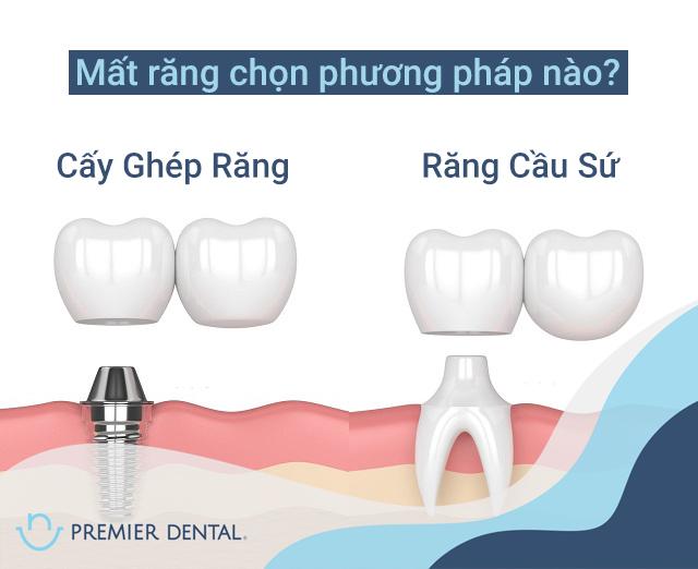 Nên chọn làm răng kiểu gì khi mất răng số 6