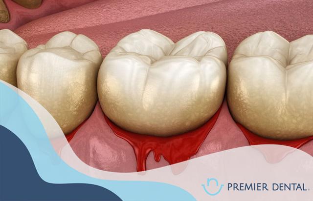 Chảy máu răng có phải bị viêm nha chu