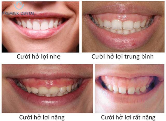 phẫu thuật nướu răng trong điều trị cười hở lợi