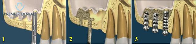Các bước cần thiết trong quá trình nâng xoang và cấy ghép Implant