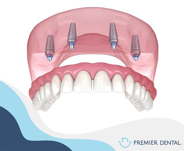 Cấy ghép răng All on 4 là gì