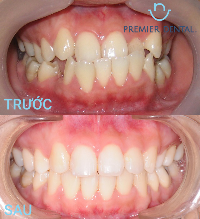 Sau khi niềng răng mắc cài sứ trông sẽ như thế nào