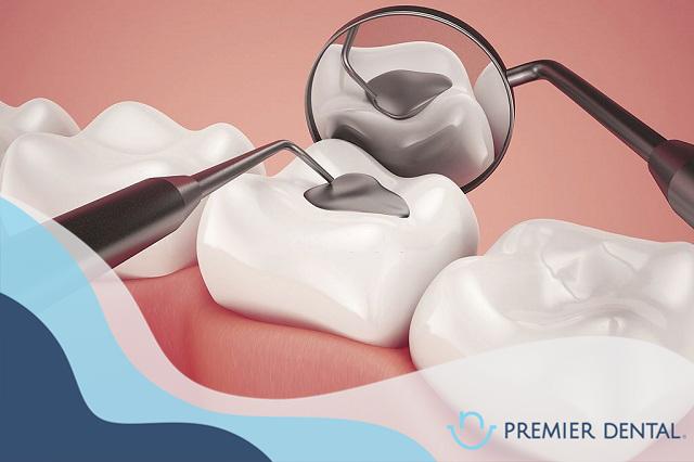 Trám răng ở đâu tốt và đẹp bền