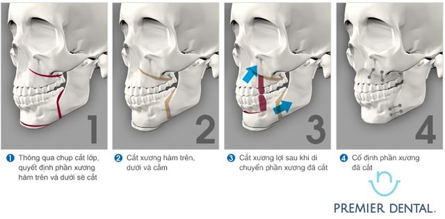 Niềng răng hỗ trợ điều trị khớp cắn