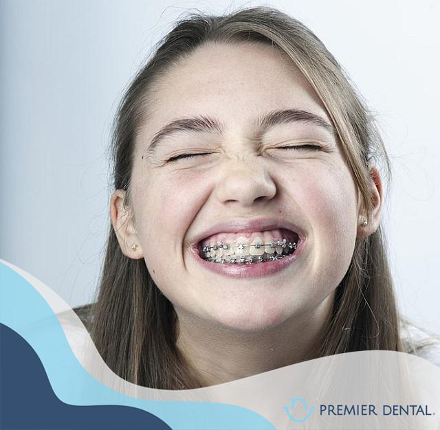 Niềng răng mắc cài kim loại cho trẻ em