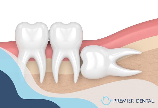 Răng khôn mọc ngang gây ảnh hưởng đến răng kế cận