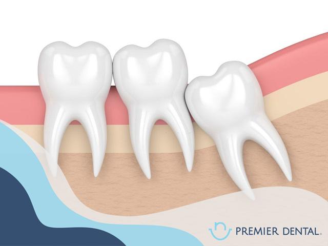 nhổ răng khôn có nên không?