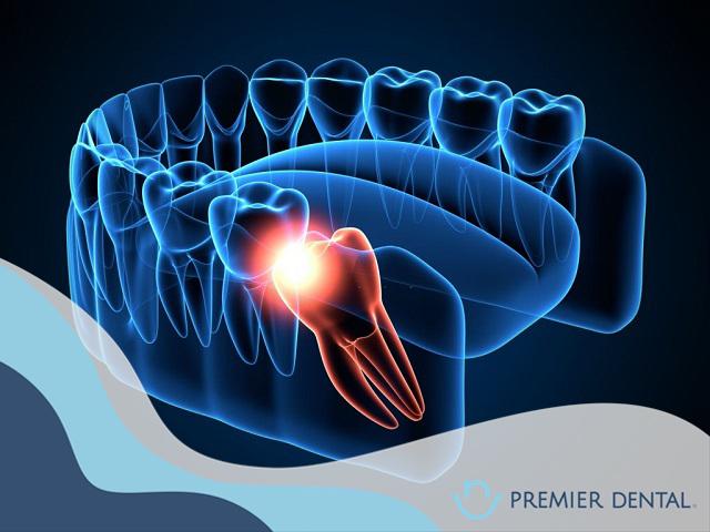 Răng khôn mọc lệch có thể gây nhiễm trụng cho vùng răng kế cận