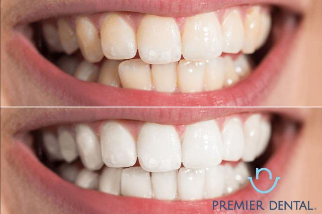 Sau khi tẩy trắng răng sẽ trông thế nào