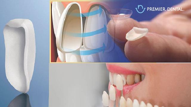Dán sứ veneers làm trắng răng