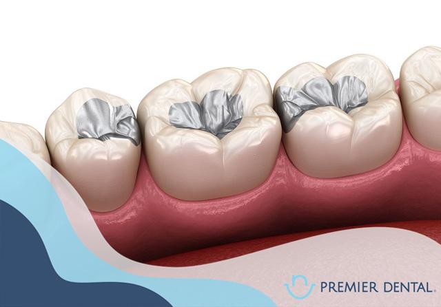 Mô phỏng vật liệu trám răng bằng Amalgan