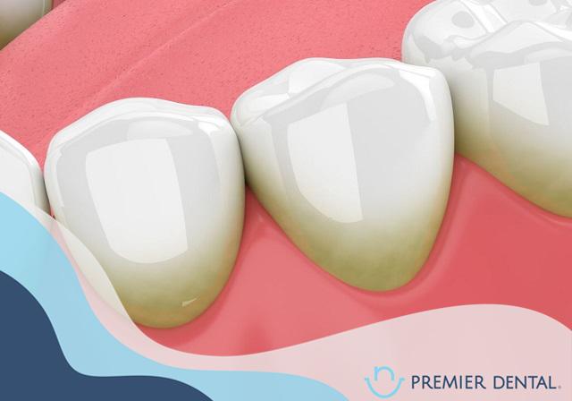 Mô phỏng cao vôi răng