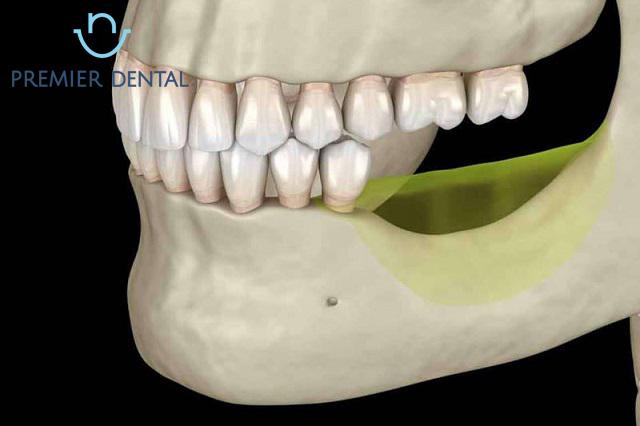 Phần xương răng bị tiêu hao cần cấy ghép xương
